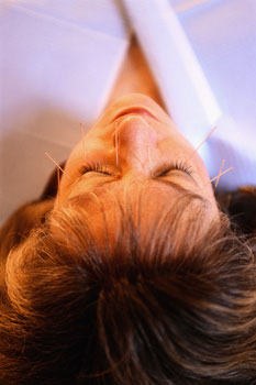 Acupuncture Services in Rancho Cucamonga, CA